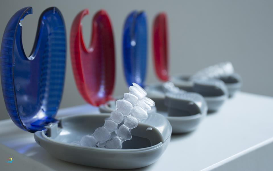 Sự thật về niềng răng trong suốt invisalign được tiết lộ bởi chuyên gia - Ảnh 2.