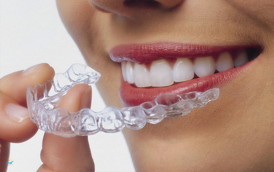 Sự thật về niềng răng trong suốt invisalign được tiết lộ bởi chuyên gia - Ảnh 4.