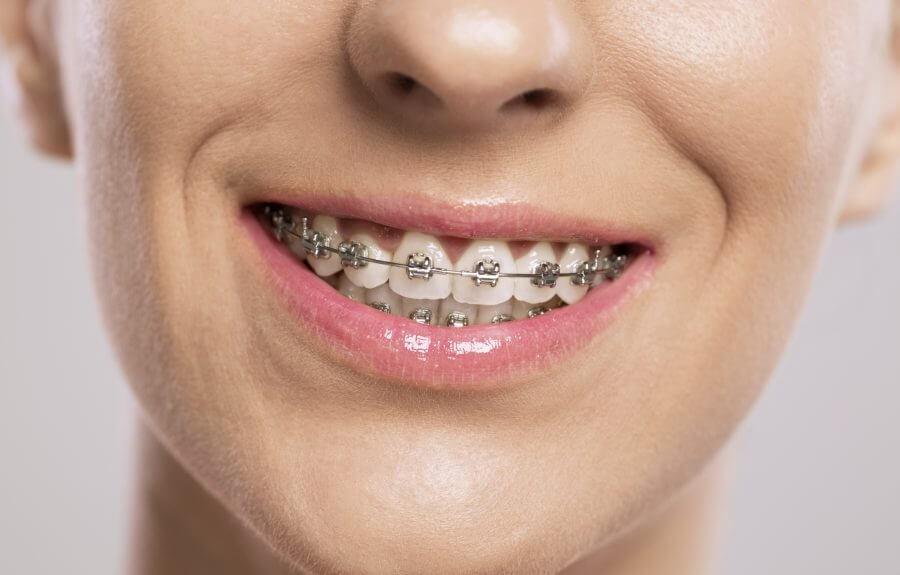 """Niềng răng """"vô hình"""" Invisalign: Xu hướng làm đẹp khiến giới trẻ """"phát cuồng"""" - Ảnh 1."""