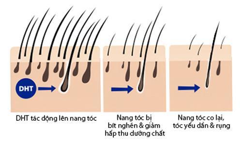 Chị em mê làm tóc sẽ tiếc hùi hụi nếu chưa biết cách này để chữa rụng tóc nhiều! - Ảnh 2.