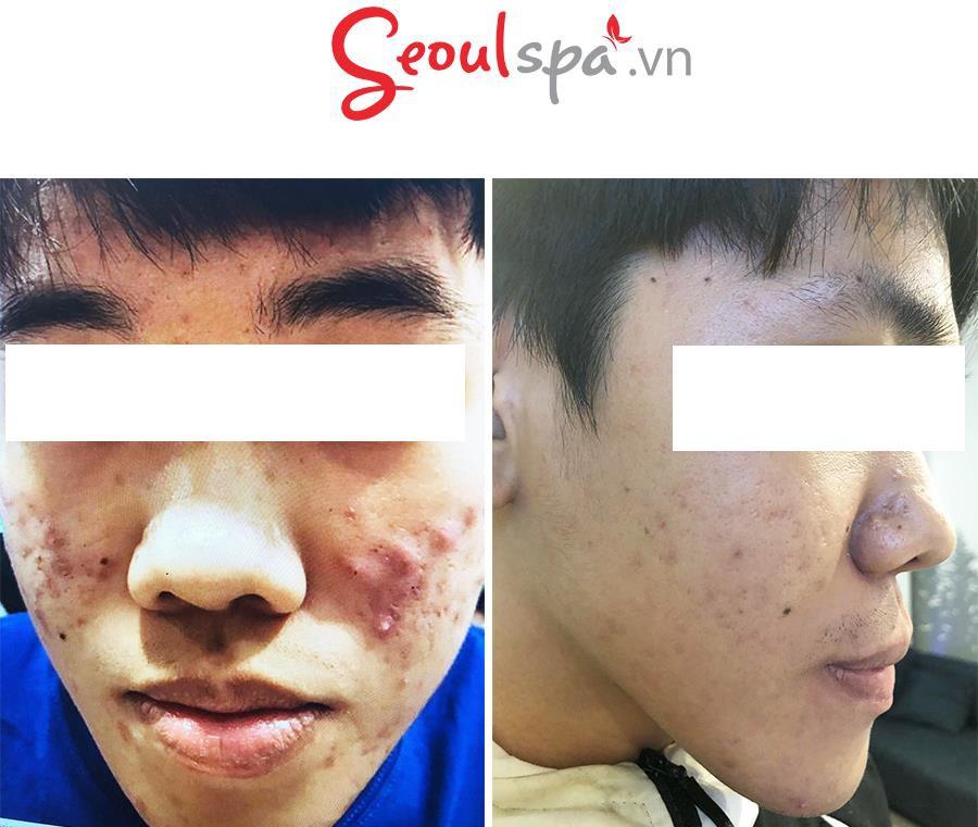 Seoul Spa - Địa chỉ trị mụn chuyên sâu giá sinh viên - Ảnh 2.