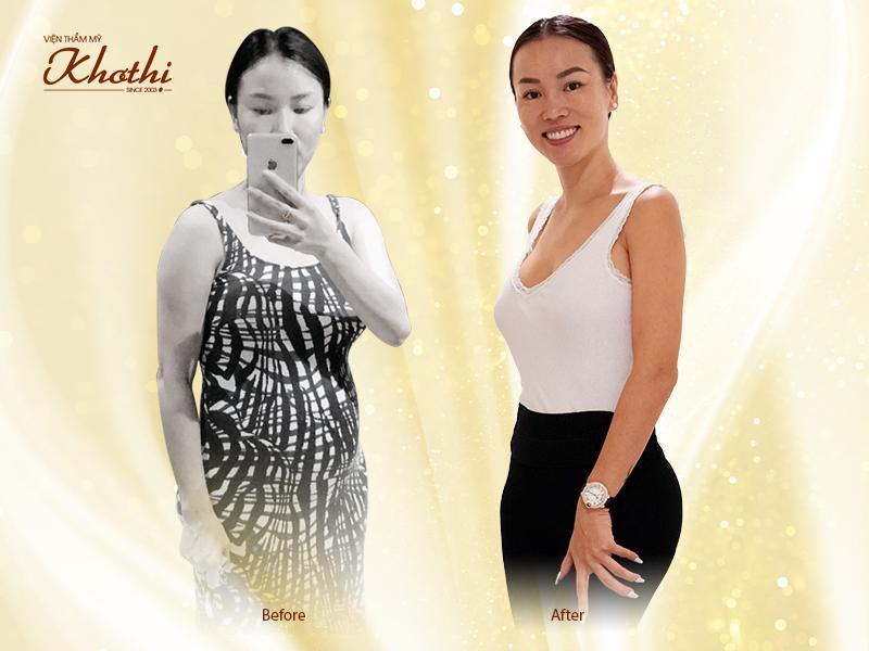 Miko Diet - Phương pháp giảm cân không hút mỡ, không ăn kiêng hoạt động như thế nào? - Ảnh 1.