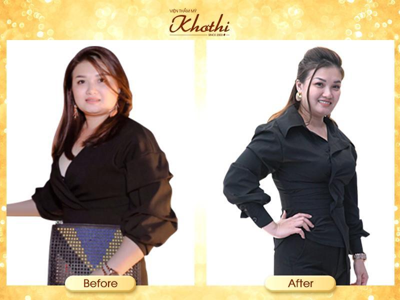 Miko Diet - Phương pháp giảm cân không hút mỡ, không ăn kiêng hoạt động như thế nào? - Ảnh 3.