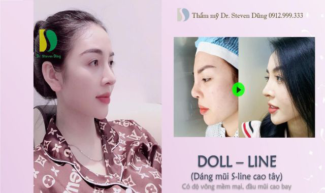 Nâng mũi Doll - line: Trào lưu thẩm mỹ đang cực hot hiện nay - Ảnh 1.