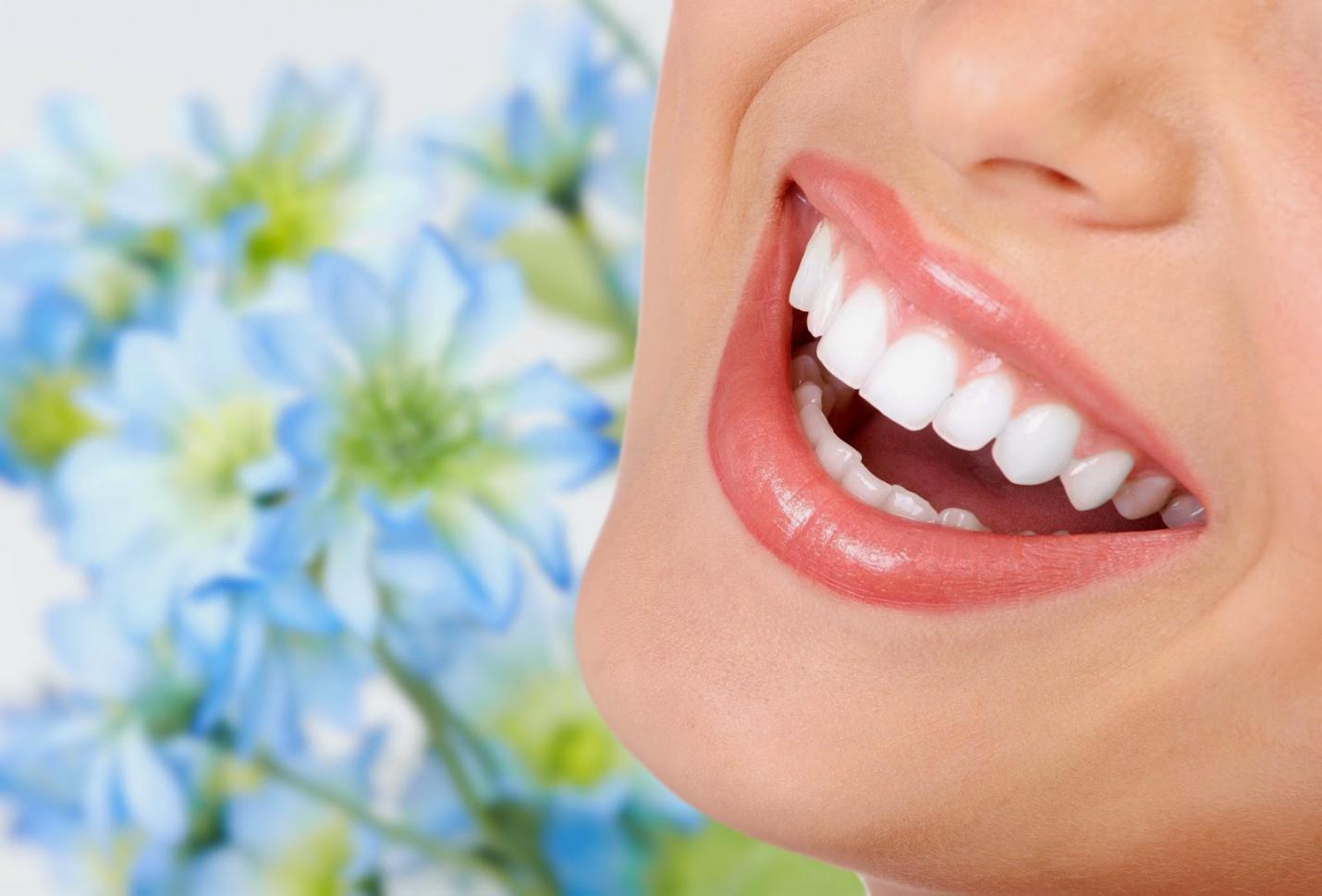 Xu hướng bọc răng sứ của người trẻ hiện đại - Ảnh 3.