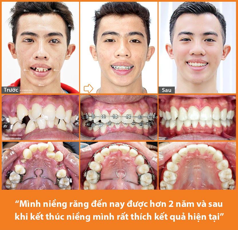 Nhật ký niềng răng 2 năm của chàng PT 24 tuổi tại nha khoa chuyên niềng răng Up Dental - Ảnh 2.