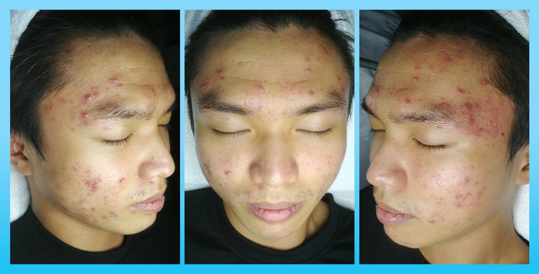 Bị mụn 5 năm không bớt - Bất ngờ hiệu quả sau 3 tuần điều trị tại O2 SKIN - Ảnh 2.