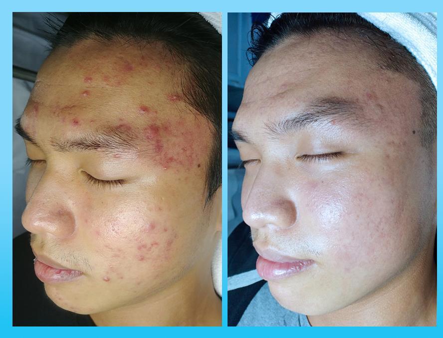 Bị mụn 5 năm không bớt - Bất ngờ hiệu quả sau 3 tuần điều trị tại O2 SKIN - Ảnh 3.