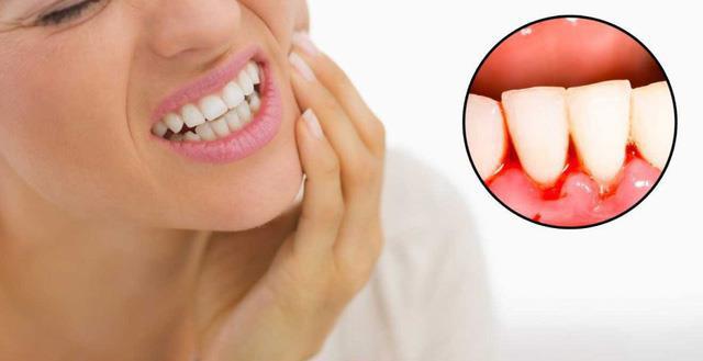 Đã khổ sở vì chảy máu chân răng lại kèm thêm hôi miệng, phải làm thế nào? - Ảnh 1.