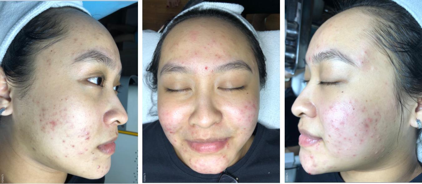 Trầy trật vì tự trị mụn suốt 5 năm, nữ sinh sư phạm bất ngờ thăng hạng nhan sắc sau 3 tháng điều trị tại O2 SKIN - Ảnh 1.