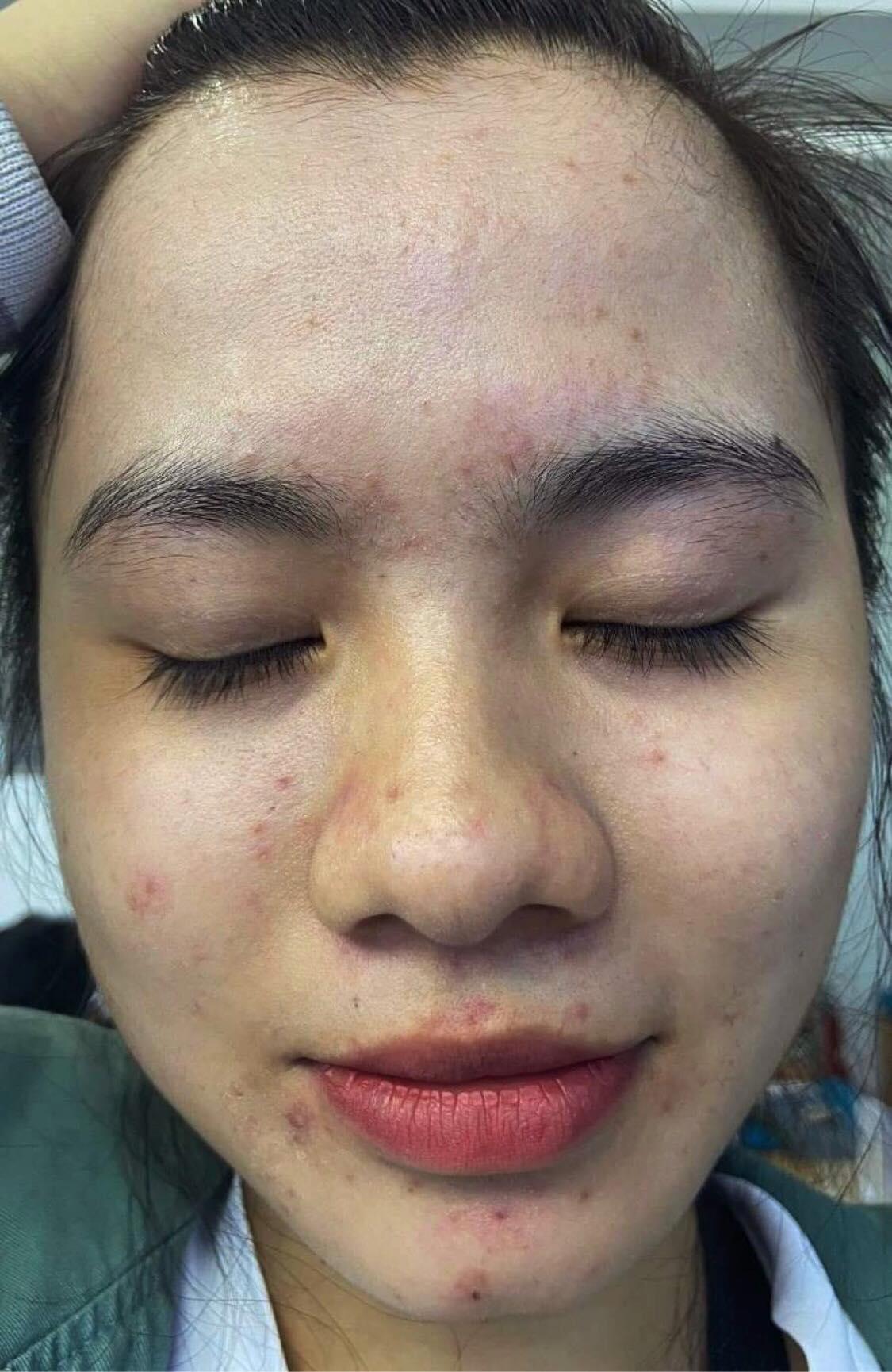 Nữ sinh Y khoa Cần Thơ thú nhận những sai lầm trong trị mụn và chốt hạ mụn viêm, mụn ẩn sau 3 tháng - Ảnh 1.