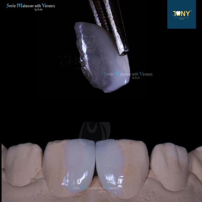 Các phương pháp làm răng thẩm mỹ mới - Ảnh 3.