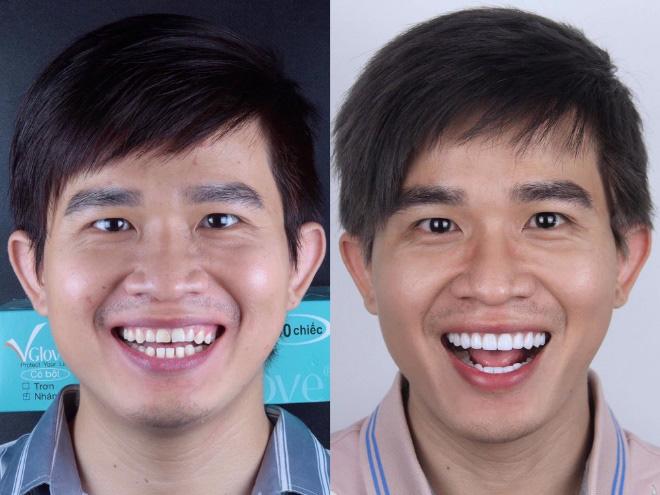 Các phương pháp làm răng thẩm mỹ mới - Ảnh 4.