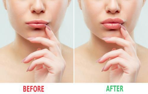 Những điều cần biết về làm đẹp an toàn bằng botox và filler - Ảnh 6.