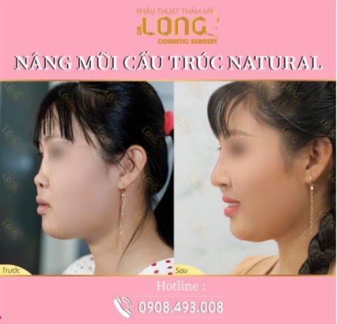 Mách bạn địa chỉ uy tín nâng mũi cấu trúc natural: Biến hình chiếc mũi đầy khuyết điểm trở nên đẹp tự nhiên mà hiệu quả lâu dài - Ảnh 4.
