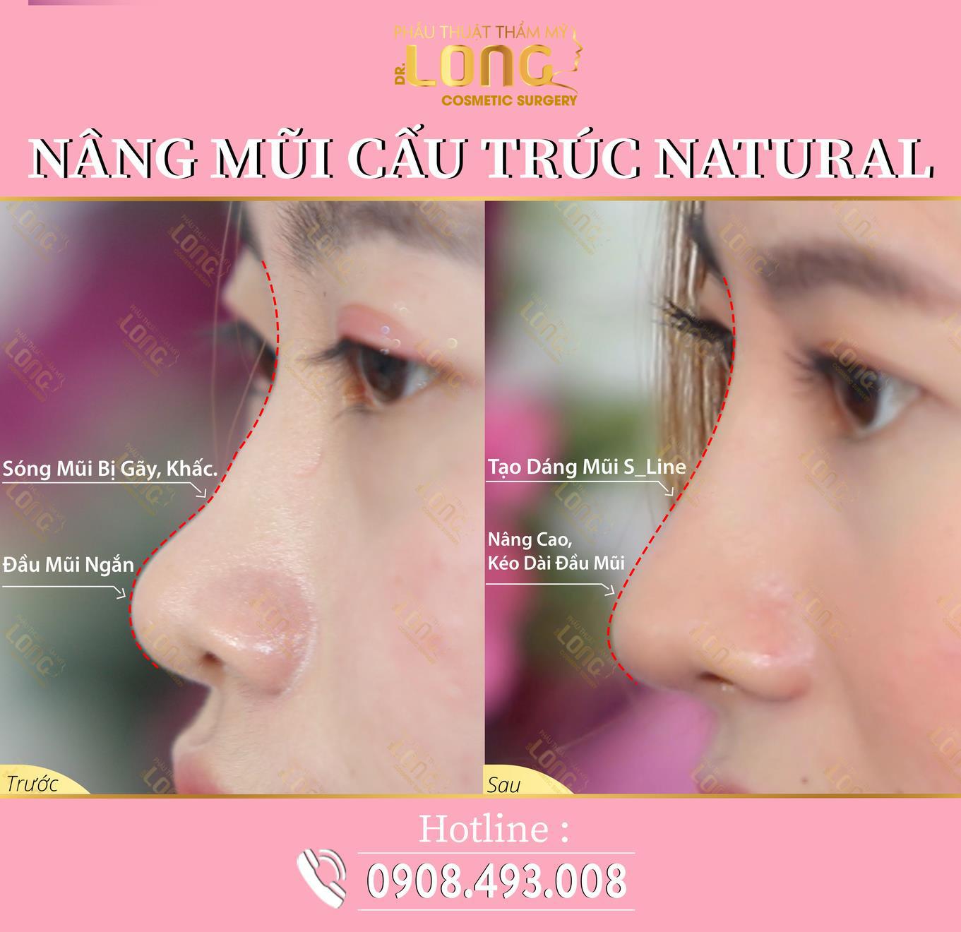 Mách bạn địa chỉ uy tín nâng mũi cấu trúc natural: Biến hình chiếc mũi đầy khuyết điểm trở nên đẹp tự nhiên mà hiệu quả lâu dài - Ảnh 3.