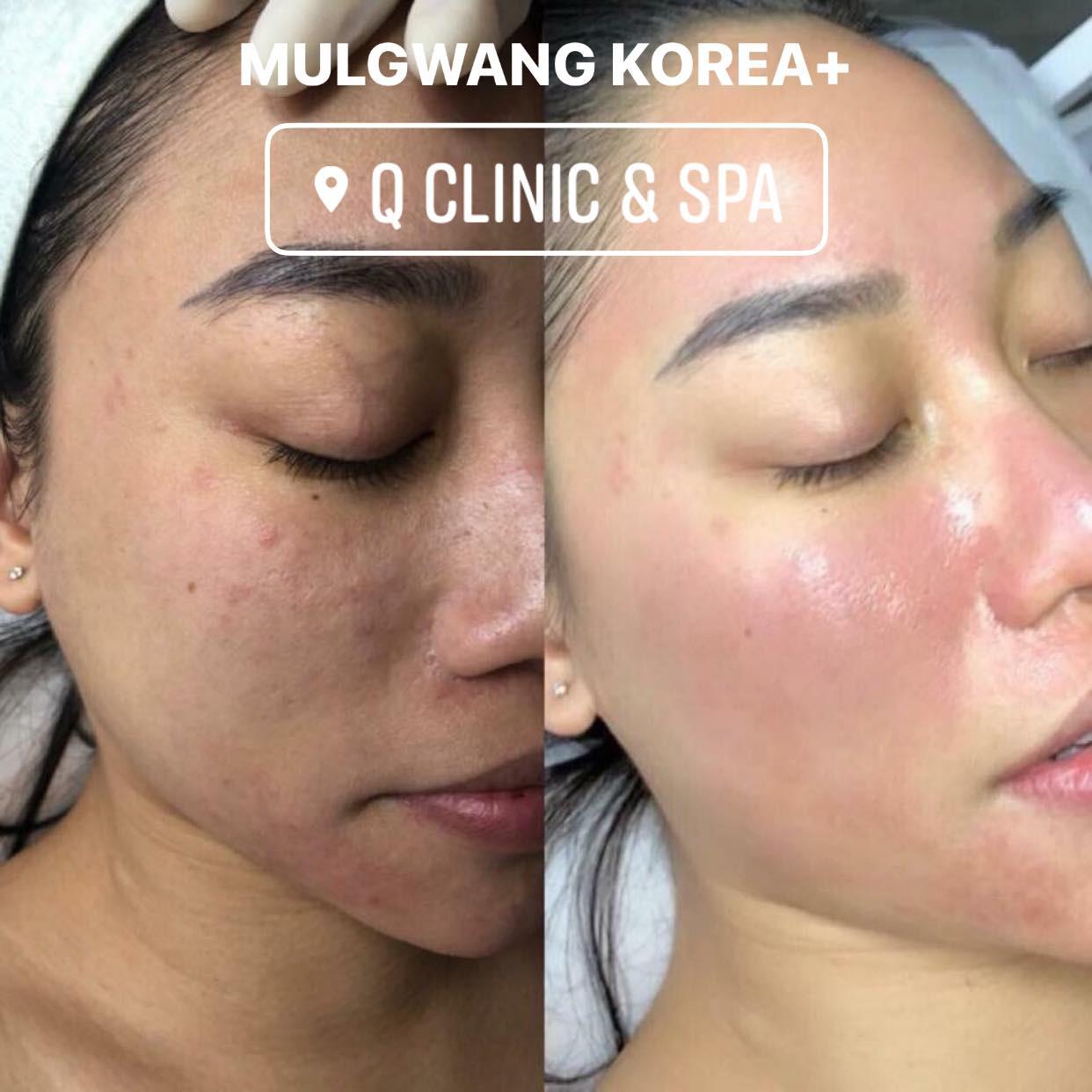 Q Clinic & Spa chia sẻ 6 lưu ý trang điểm khi da bị mụn - Ảnh 2.