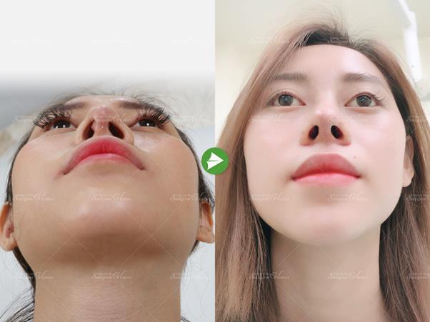 Nâng mũi sụn sườn Fascia: Xu hướng thẩm mỹ mũi được nhiều hot girl, TikToker lựa chọn - Ảnh 1.