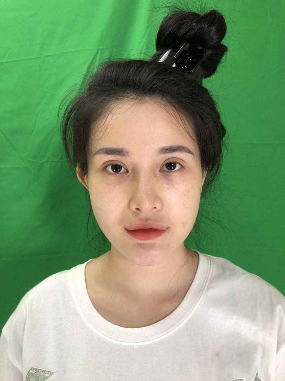 Nâng mũi sụn sườn Fascia: Xu hướng thẩm mỹ mũi được nhiều hot girl, TikToker lựa chọn - Ảnh 4.