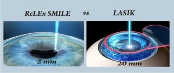 ReLEx SMILE – Bye bye cặp kính - Ảnh 2.