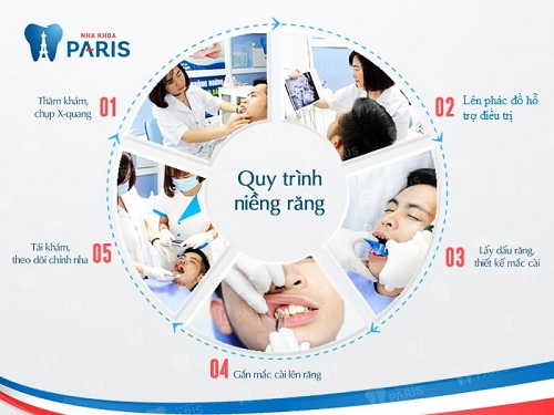 Bật mí về công nghệ niềng răng được Changmin (DBSK), SeHun (EXO) yêu thích sắp có mặt tại Việt Nam - Ảnh 2.