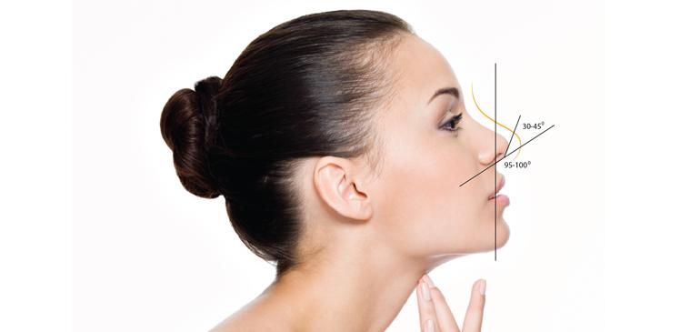 Những điều bạn cần phải biết trước và sau khi phẫu thuật nâng mũi - Ảnh 2.
