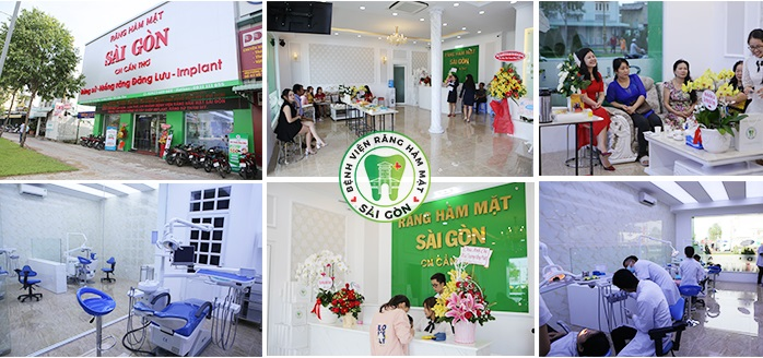 Nhiều khuyến mãi làm răng tại phòng khám chuyên khoa răng hàm mặt Sài Gòn Cần Thơ - Ảnh 2.