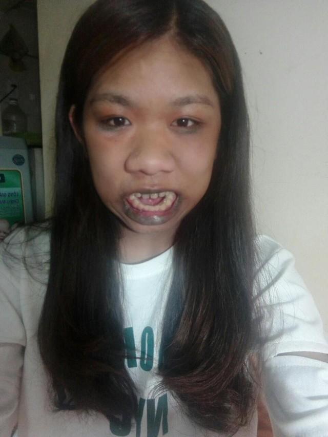 """Cô gái người khỉ 22 năm há miệng vì 10 căn bệnh """"quái gở"""" - Ảnh 2."""