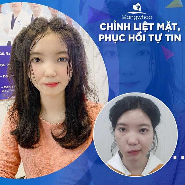 Bệnh viện thẩm mỹ Gangwhoo – bệnh viện chữa liệt mặt tốt tại Tp Hồ Chí Minh - Ảnh 4.