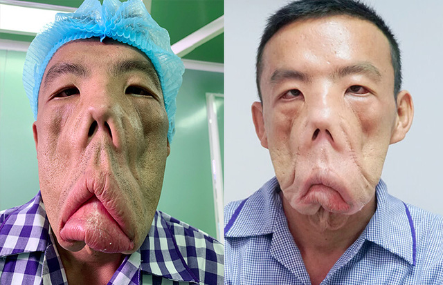 Giải mã 23.000 Gen của anh Mến mặt xệ, bác sĩ Tú Dung quyết tìm nguyên nhân bệnh lạ - ảnh 2
