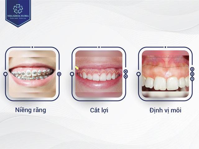 Cắt lợi tạo hình xương ổ răng có làm răng bị yếu đi? - ảnh 1