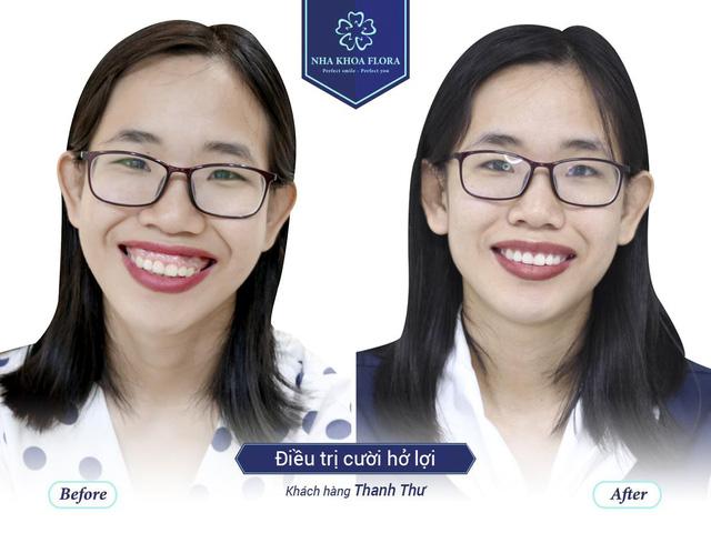 Cắt lợi tạo hình xương ổ răng có làm răng bị yếu đi? - ảnh 2