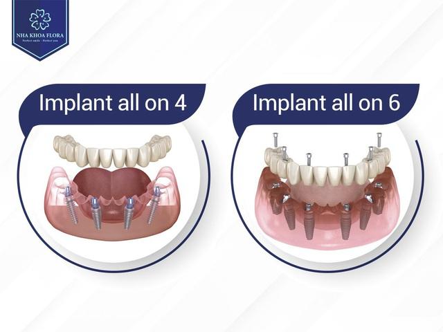 Khi nào bạn cần cấy ghép implant all on 4 - Ảnh 1.