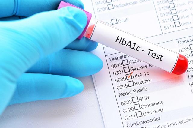 ALA-Bio: Hơn 20 năm nghiên cứu về hỗ trợ điều trị tiểu đường - Ảnh 1.