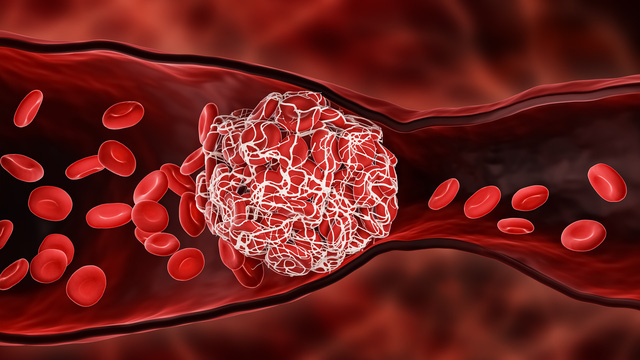 Covid-19 có thể gây ra đột quỵ vì cục máu đông - Ảnh 1.