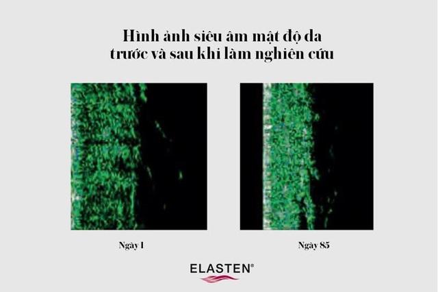 ELASTEN® Việt Nam - Liệu pháp dưỡng cấu trúc da tươi trẻ từ bên trong đến từ Đức - Ảnh 1.