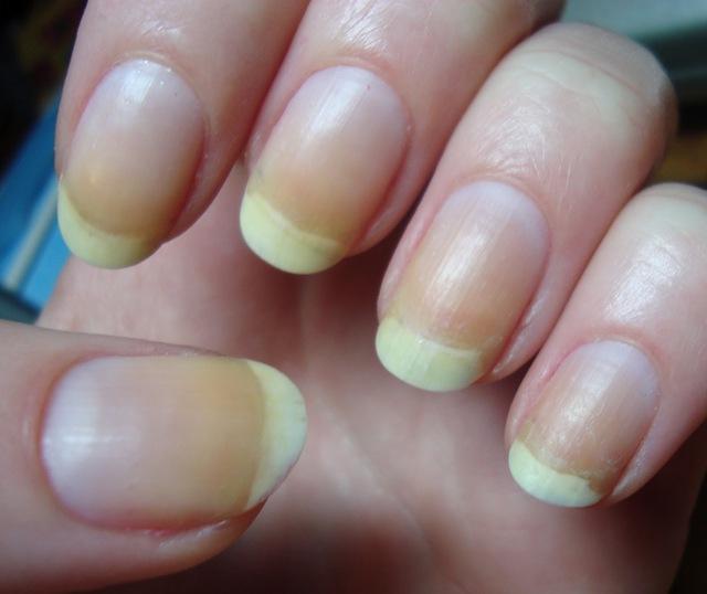 Dừng ngay việc sơn móng tay nếu đang trong 3 tình trạng này - Ảnh 2.